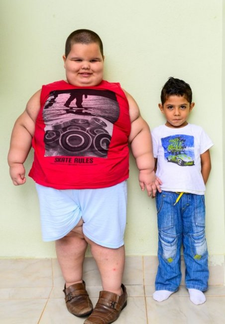 The five-year boy weighs 80 kilograms